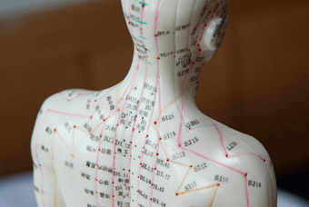 What Is Acupuncture Melanie Leeson Acupuncture Model